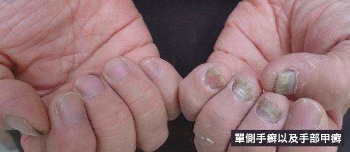 單側手癬以及手部甲癬