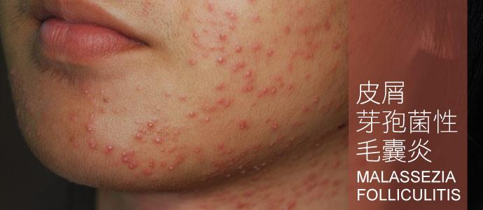 皮屑芽孢菌性毛囊炎